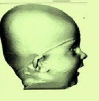Kopfverformung und Helmtherapie